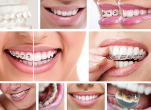 Wanting a straight smile? Dr. Edward Dooley offers options for braces in his Wall Township office. Learn what qualifies you for today's orthodontics.