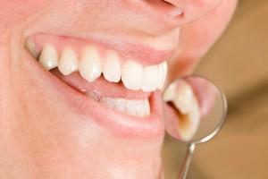 teeth whitening spring lake