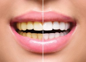 side-by-side comparison of yellow smile before and after Spring Lake dentist