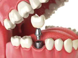 a computer illustration showing how a dental implant is able to replace a missing tooth
