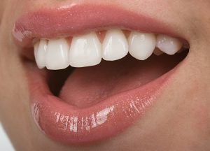 Closeup of brilliant white smile