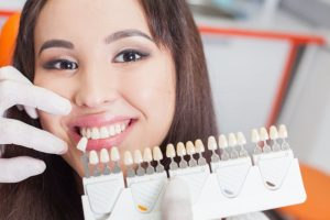 woman posing with porcelain veneers