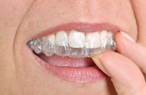 woman inserting invisalign tray