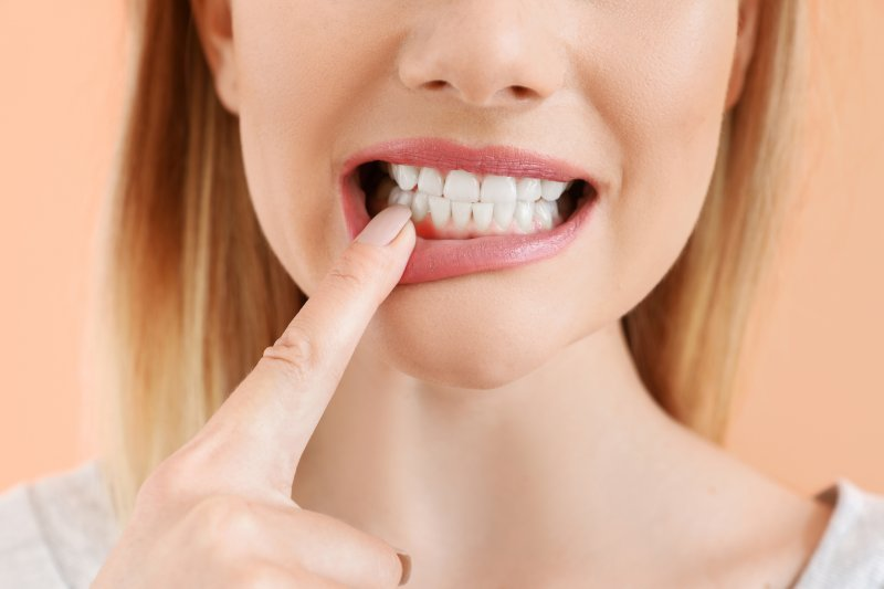 Woman pointing to her gums