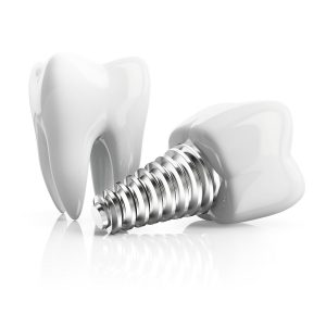 Replace your missing teeth with dental implants in Wall Township.